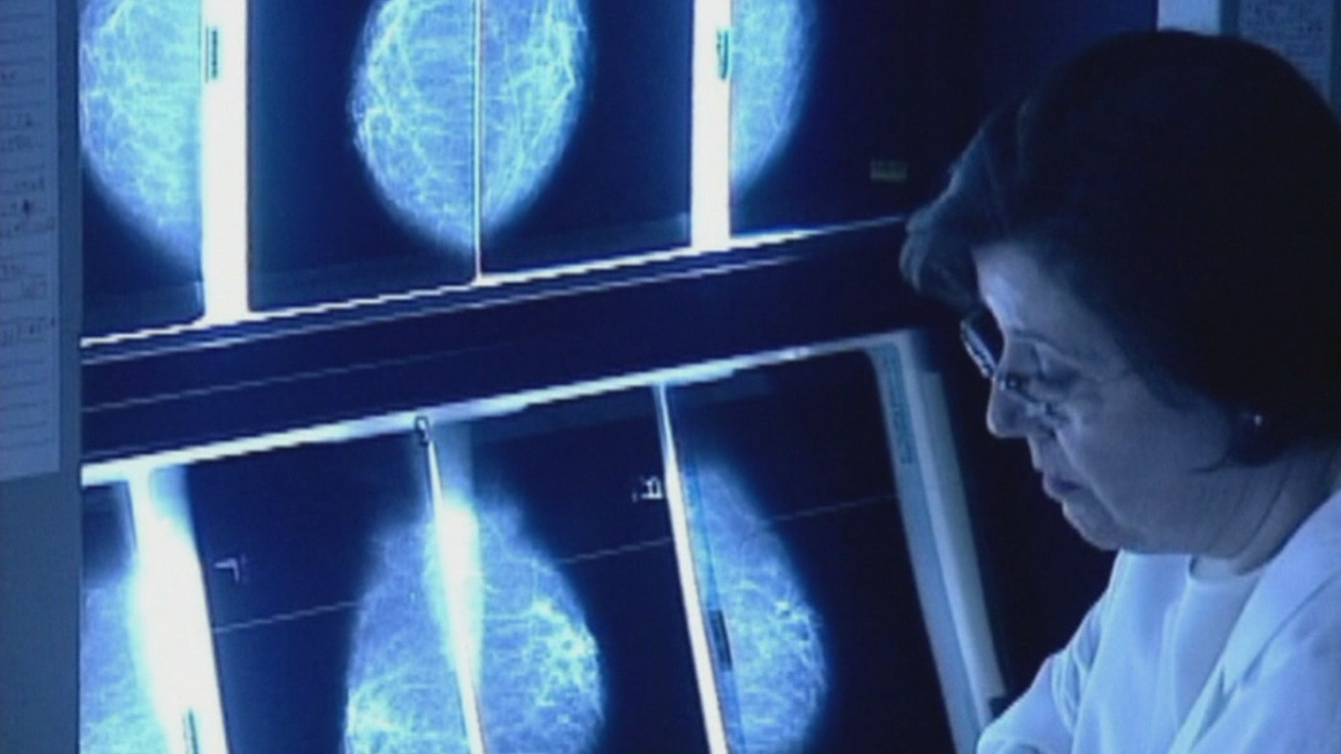 Scientists use novel computer modeling to detect breast cancer recurrence – WISH-TV | Indianapolis News | Indiana Weather